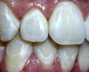 Mancha por mala higiene durante tratamiento de ortodoncia.