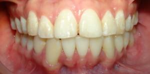 Porque son necesarias extracciones en tratamientos de ortodoncia ortodoncia mayorga - Como alinear los dientes en casa sin brackets ...