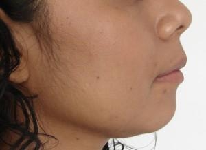 perfil fin