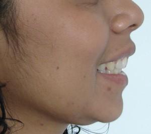 sonrisa perfil fin