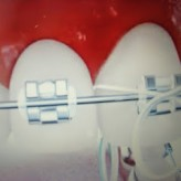 Important recommendations for the care of your orthodontic treatment