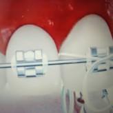 Importantes recomendaciones para el cuidado de tu tratamiento de ortodoncia