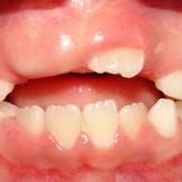 Dientes supernumerarios en dentición mixta temprana
