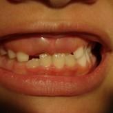 Mordida cruzada anterior en dentición mixta temprana