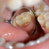 Caries accident in orthodontic treatment.