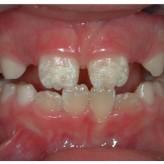 ¿Porque los dientes salen con manchas?