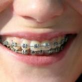¿Cuanto dura un tratamiento de ortodoncia?