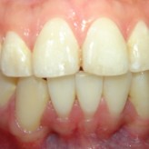 Why extractions are necessary orthodontic treatment?