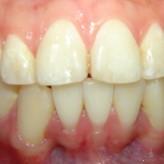 ¿Porque son necesarias extracciones en tratamientos de ortodoncia?