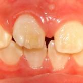 Espacios interdentales (entre dientes)