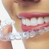¿Que pasa si no utilizo Ortodoncia?