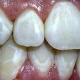 Prevención de manchas durante tratamiento de ortodoncia